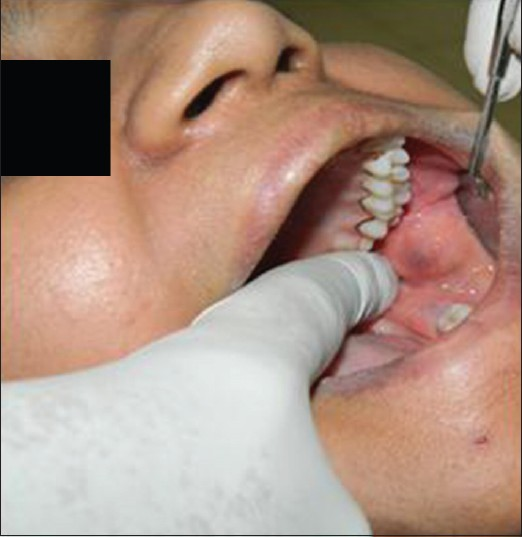 Figure 1: Preoperative intraoral view