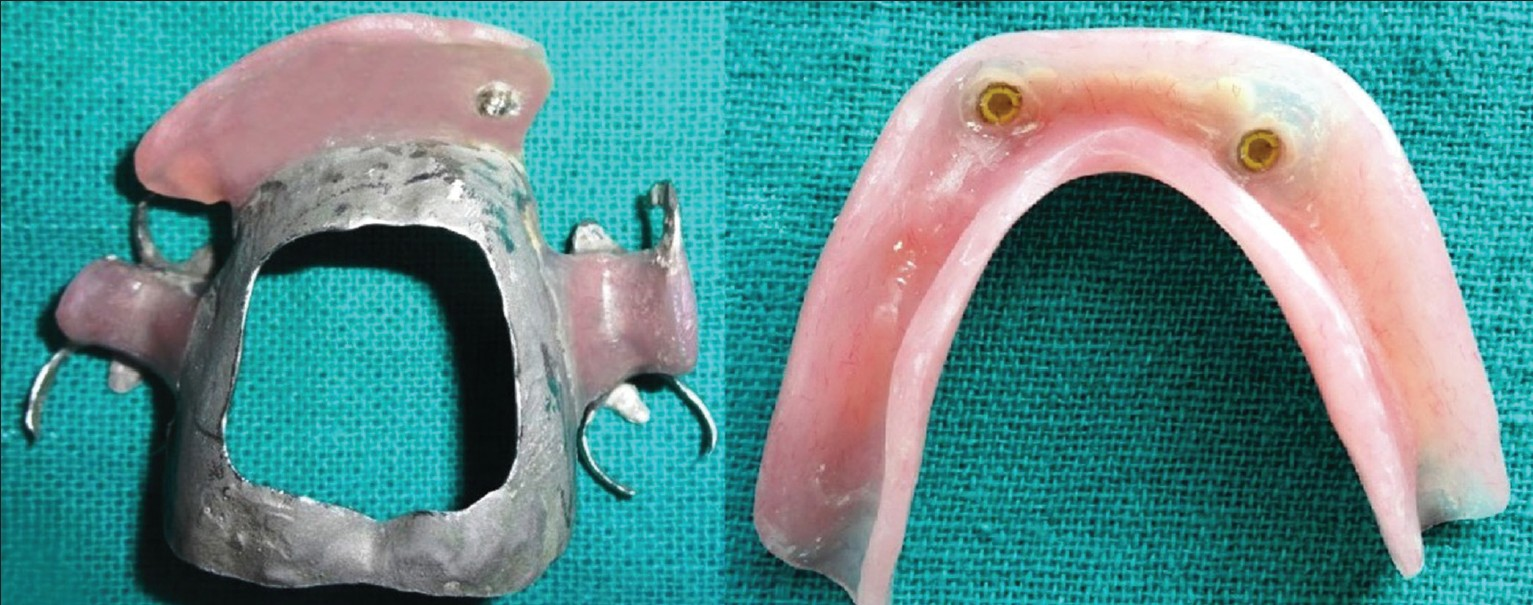 Figure 6: Finished maxillary cast partial and mandibular overdenture with counterpart attachment