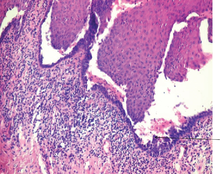 Oral pemphigus vulgaris: A case series and review of literature