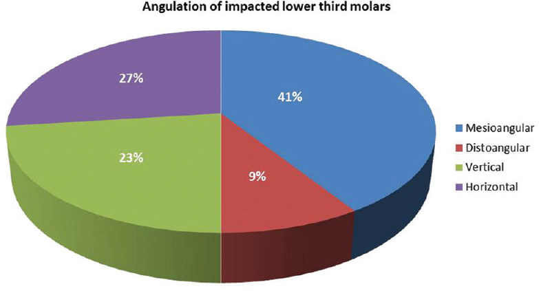 Figure 3: Graph showing the angulation of the impacted lower third molars